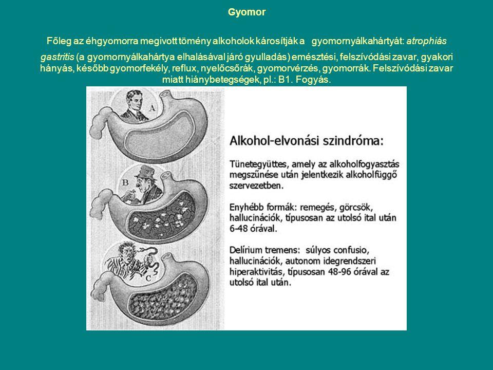 Gyomor Főleg az éhgyomorra megivott tömény alkoholok károsítják a gyomornyálkahártyát: atrophiás gastritis (a gyomornyálkahártya elhalásával járó gyulladás) emésztési, felszívódási zavar, gyakori hányás, később gyomorfekély, reflux, nyelőcsőrák, gyomorvérzés, gyomorrák.