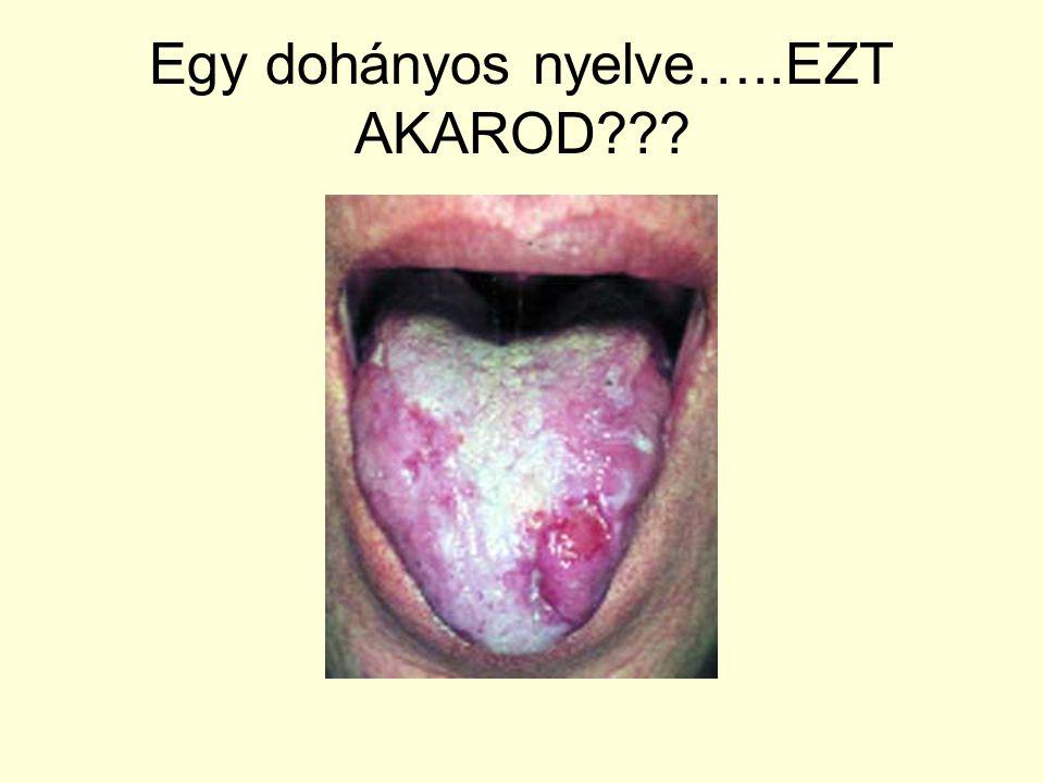 Egy dohányos nyelve…..EZT AKAROD