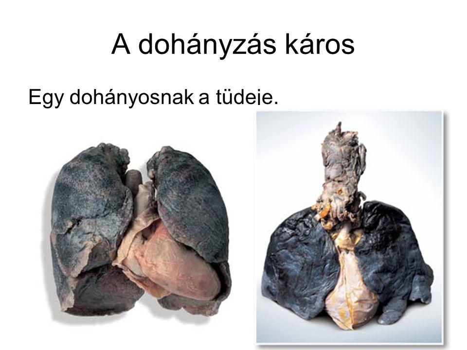A dohányzás káros Egy dohányosnak a tüdeje.