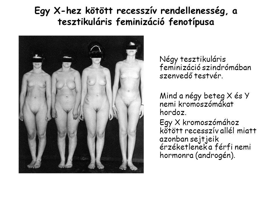 Egy X-hez kötött recesszív rendellenesség, a tesztikuláris feminizáció fenotípusa