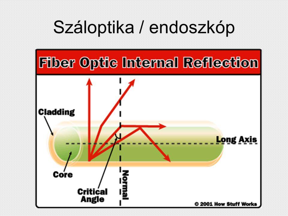 Száloptika / endoszkóp