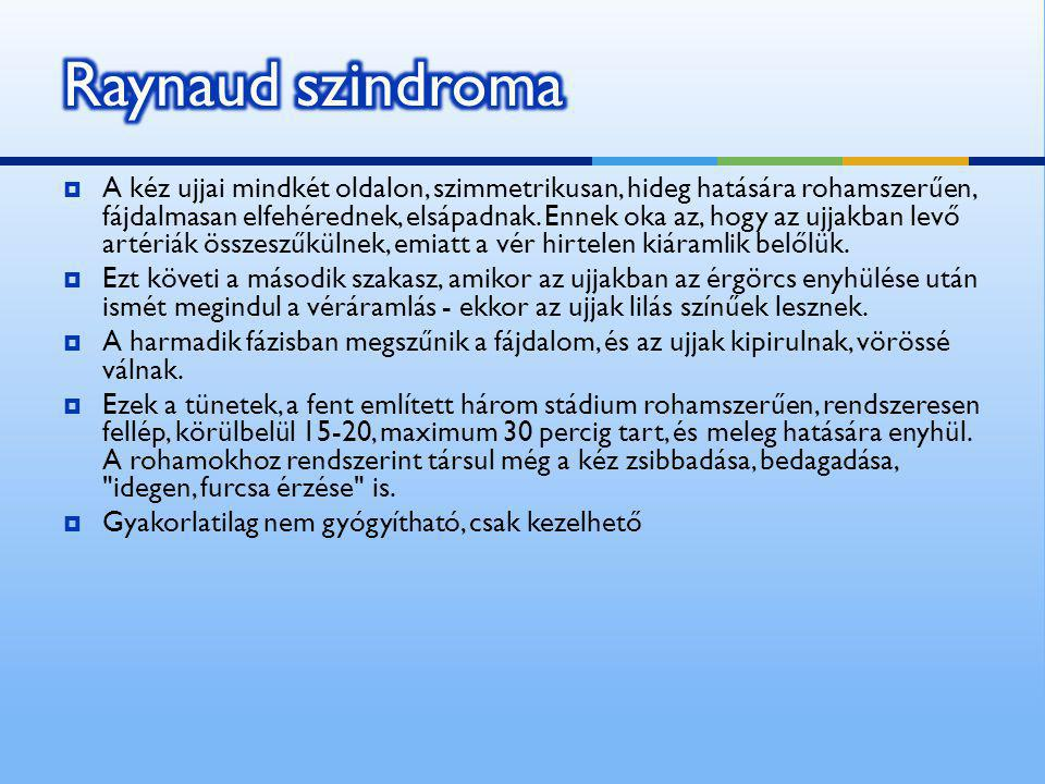 Raynaud szindroma