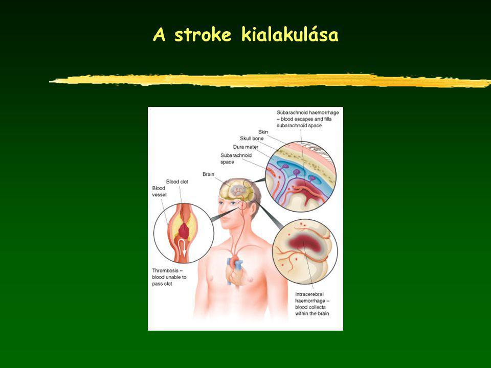 A stroke kialakulása