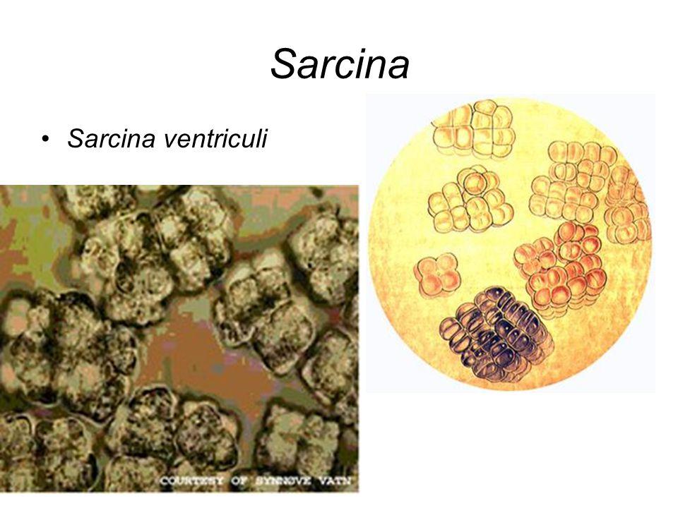Sarcina Sarcina ventriculi