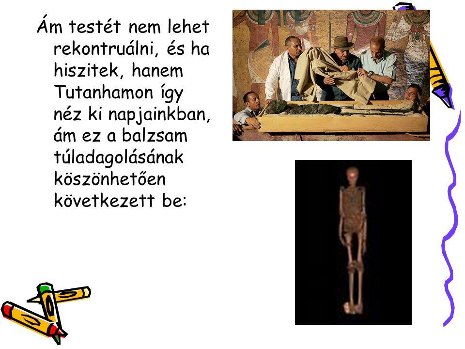 Ám testét nem lehet rekontruálni, és ha hiszitek, hanem Tutanhamon így néz ki napjainkban, ám ez a balzsam túladagolásának köszönhetően következett be: