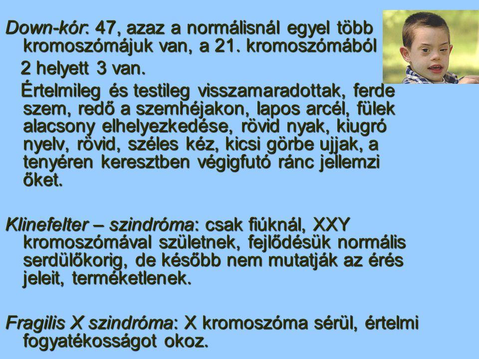 Down-kór: 47, azaz a normálisnál egyel több kromoszómájuk van, a 21