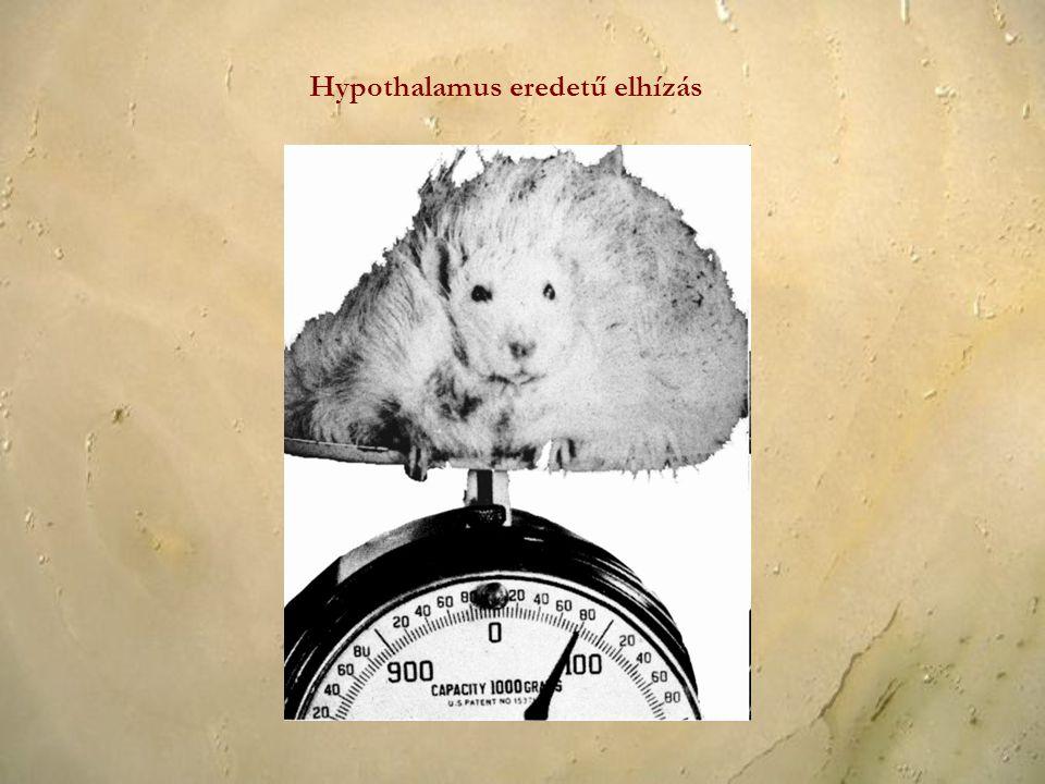 Hypothalamus eredetű elhízás