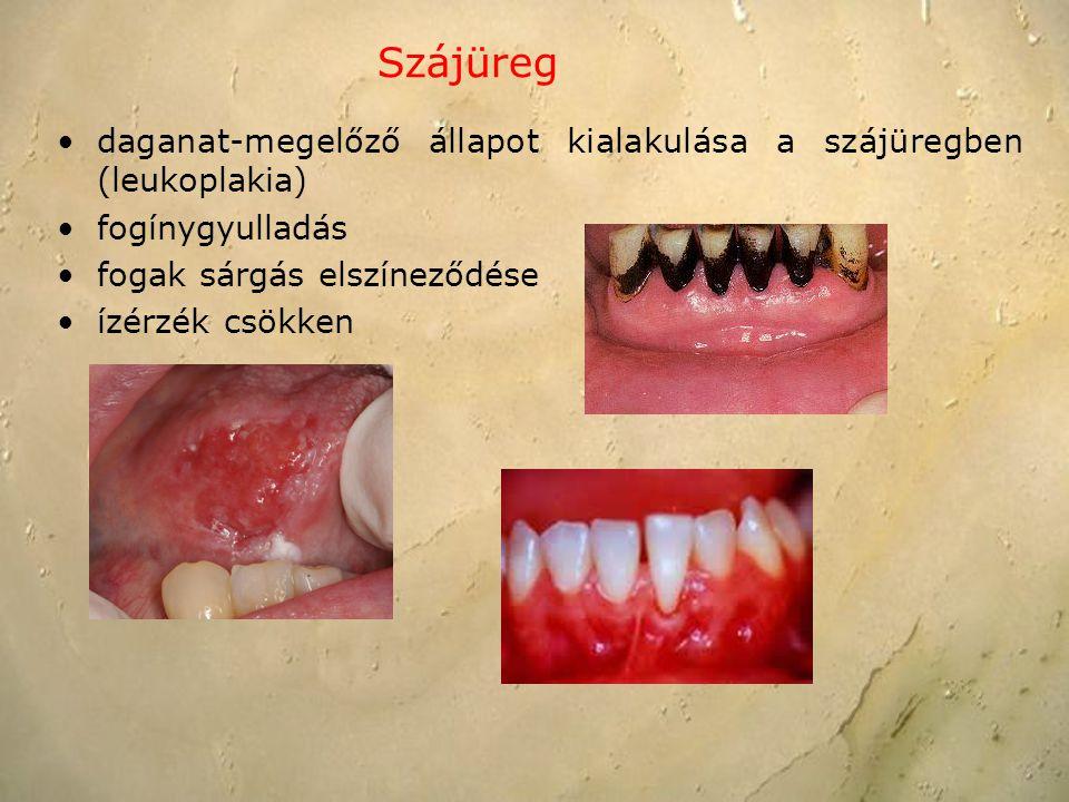 Szájüreg daganat-megelőző állapot kialakulása a szájüregben (leukoplakia) fogínygyulladás. fogak sárgás elszíneződése.