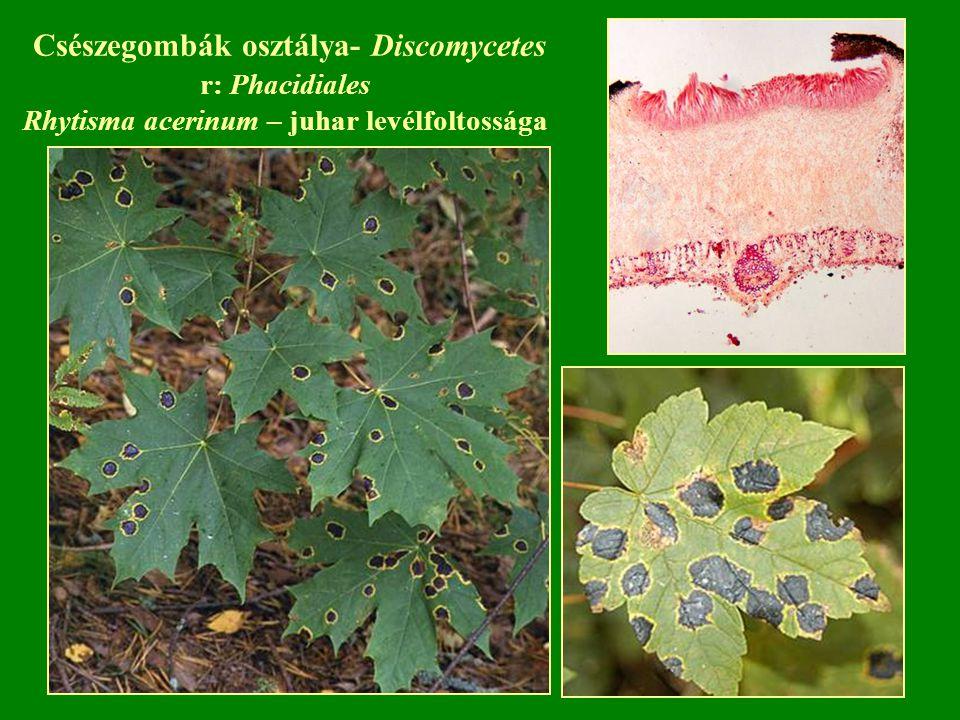 Csészegombák osztálya- Discomycetes