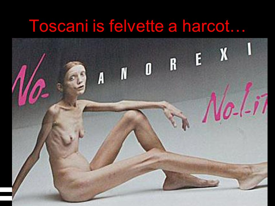 Toscani is felvette a harcot…