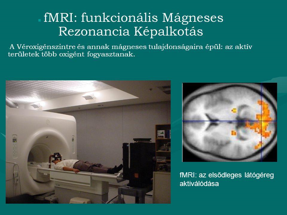 fMRI: funkcionális Mágneses Rezonancia Képalkotás