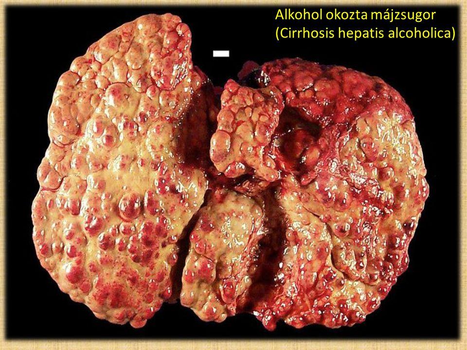 Alkohol okozta májzsugor (Cirrhosis hepatis alcoholica)