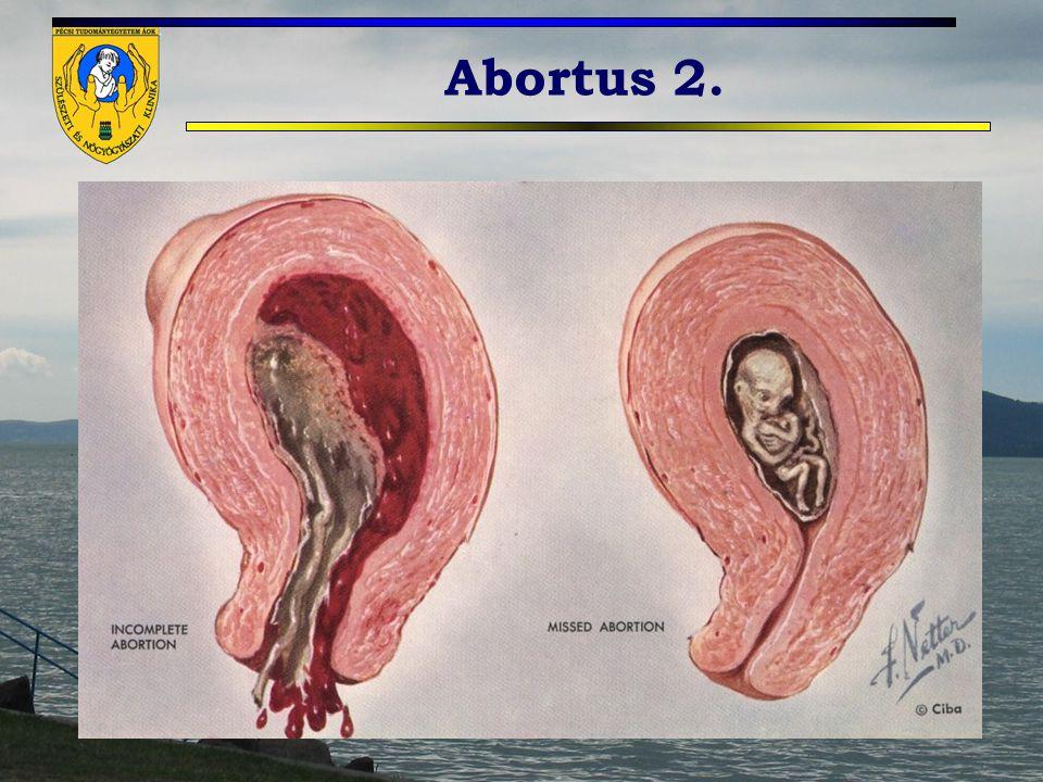 Abortus 2.