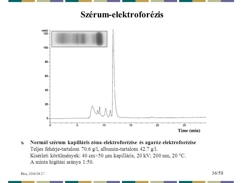 Szérum-elektroforézis