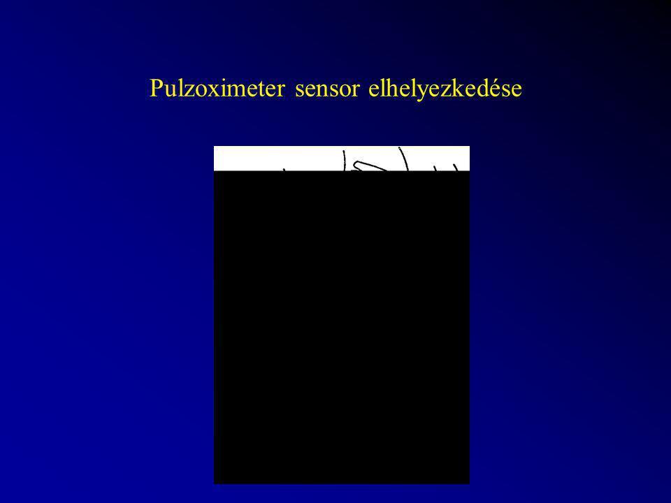 Pulzoximeter sensor elhelyezkedése
