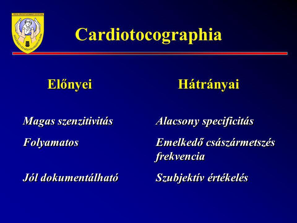 Cardiotocographia Előnyei Hátrányai