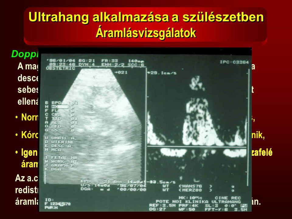 Ultrahang alkalmazása a szülészetben Áramlásvizsgálatok