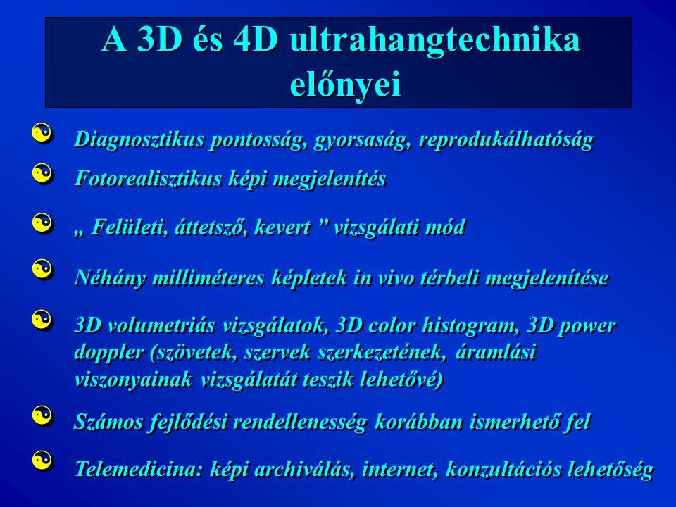 A 3D és 4D ultrahangtechnika előnyei