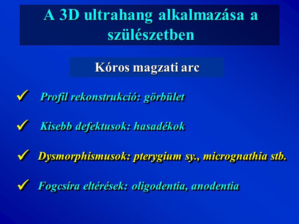 A 3D ultrahang alkalmazása a szülészetben