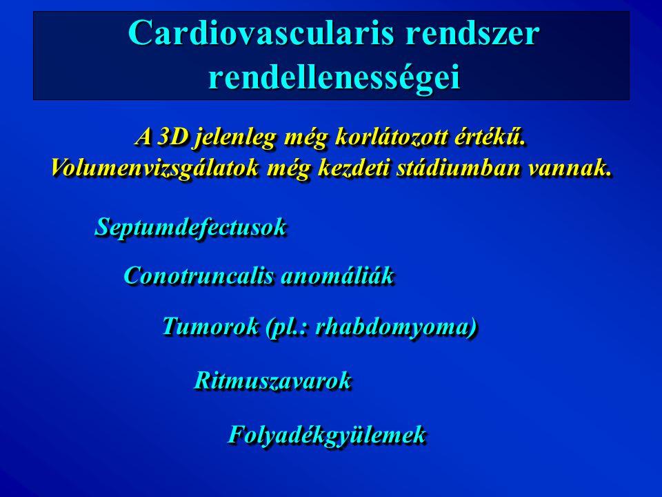 Cardiovascularis rendszer rendellenességei