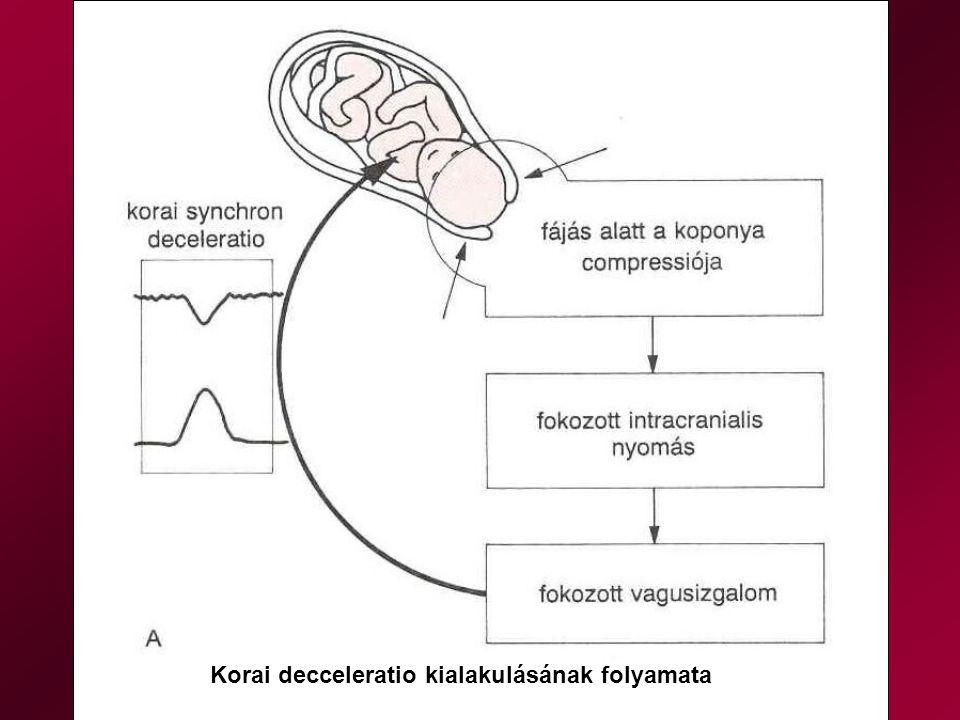 Korai decceleratio kialakulásának folyamata