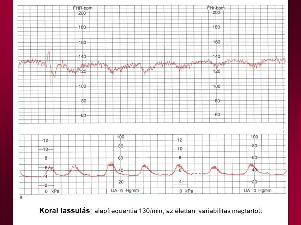 Korai lassulás; alapfrequentia 130/min, az élettani variabilitas megtartott