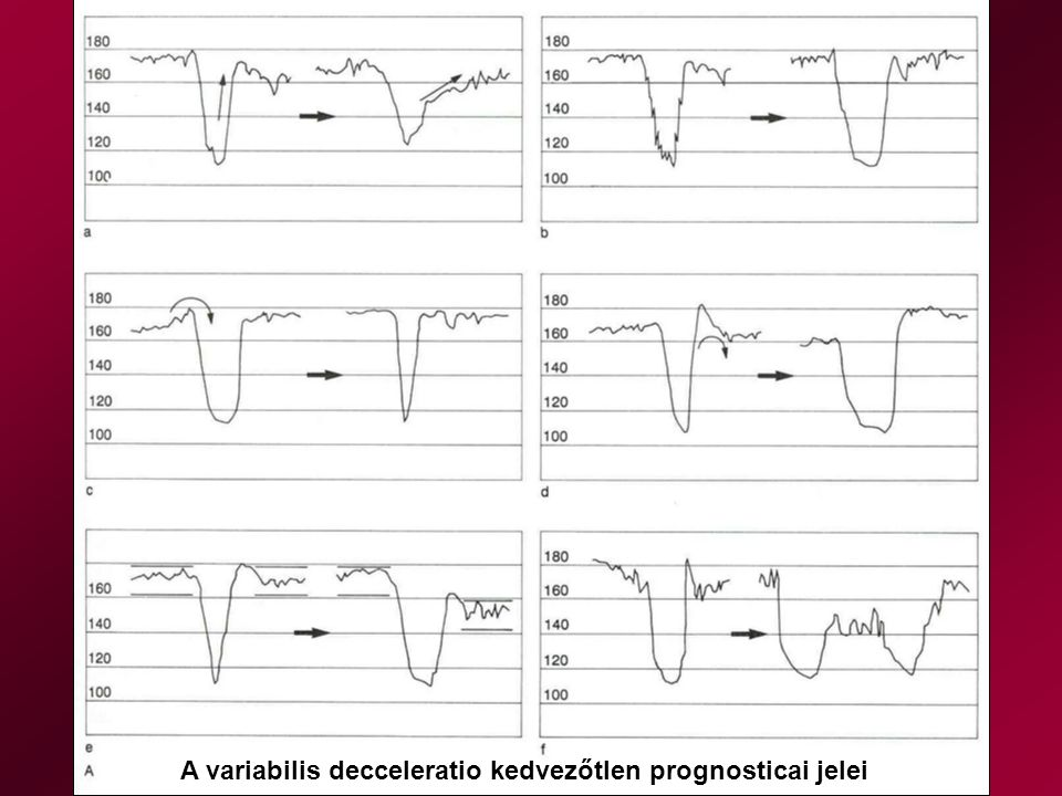 A variabilis decceleratio kedvezőtlen prognosticai jelei