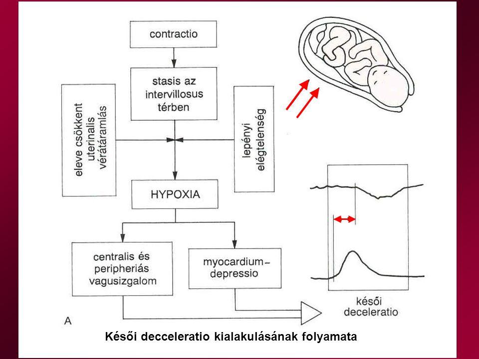 Késői decceleratio kialakulásának folyamata