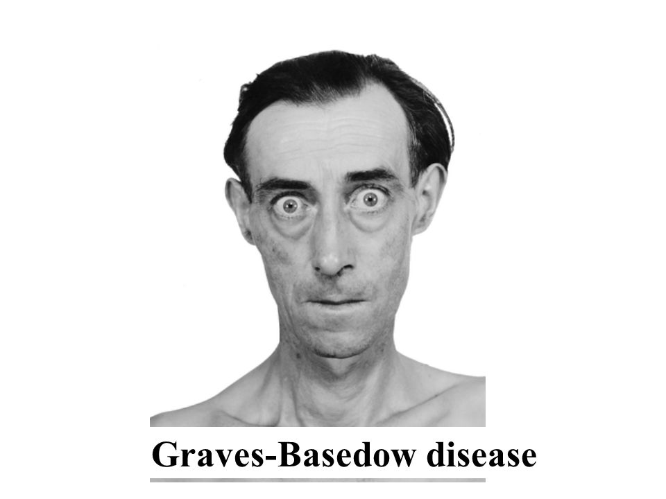 Graves-Basedow disease
