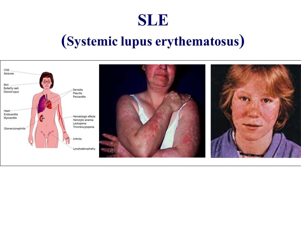 SLE (Systemic lupus erythematosus)