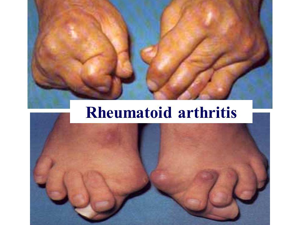 Rheumatoid arthritis Rheumatoid arthritis
