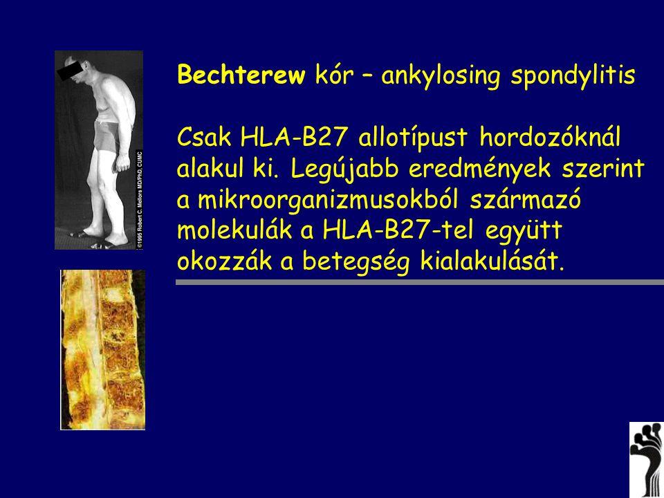 Bechterew kór – ankylosing spondylitis