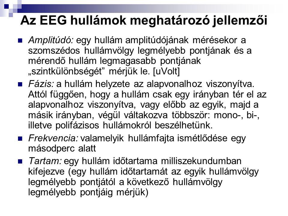 Az EEG hullámok meghatározó jellemzői