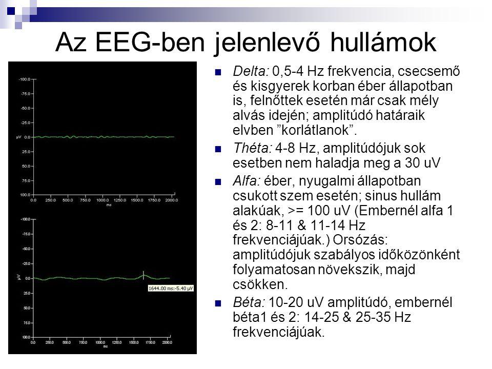 Az EEG-ben jelenlevő hullámok