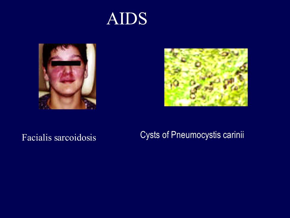 AIDS Cysts of Pneumocystis carinii Facialis sarcoidosis
