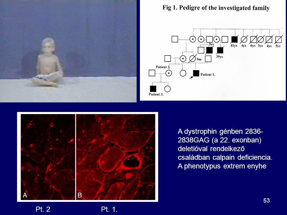 A dystrophin génben 2836-2838GAG (a 22