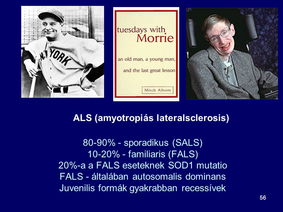 ALS (amyotropiás lateralsclerosis)