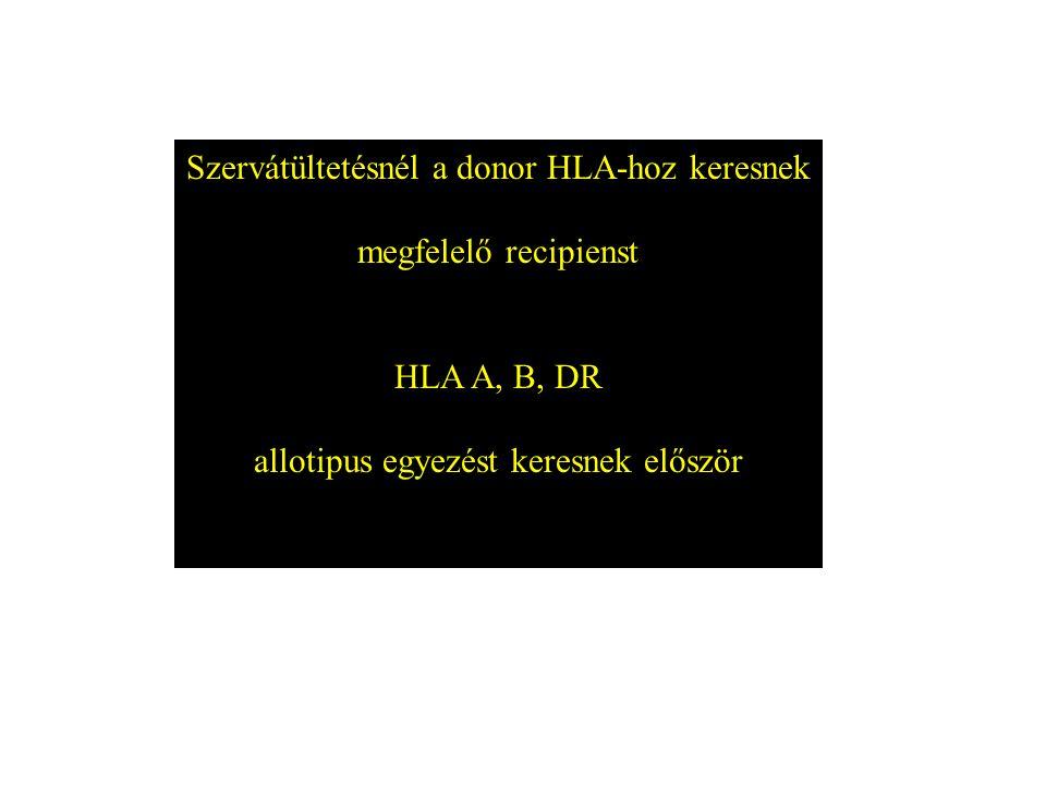 Szervátültetésnél a donor HLA-hoz keresnek megfelelő recipienst
