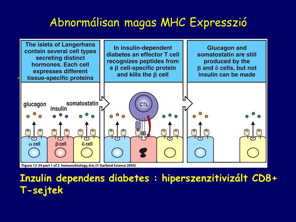 Abnormálisan magas MHC Expresszió
