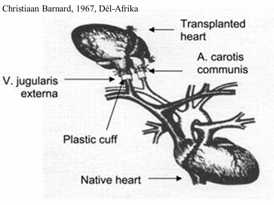 Christiaan Barnard, 1967, Dél-Afrika