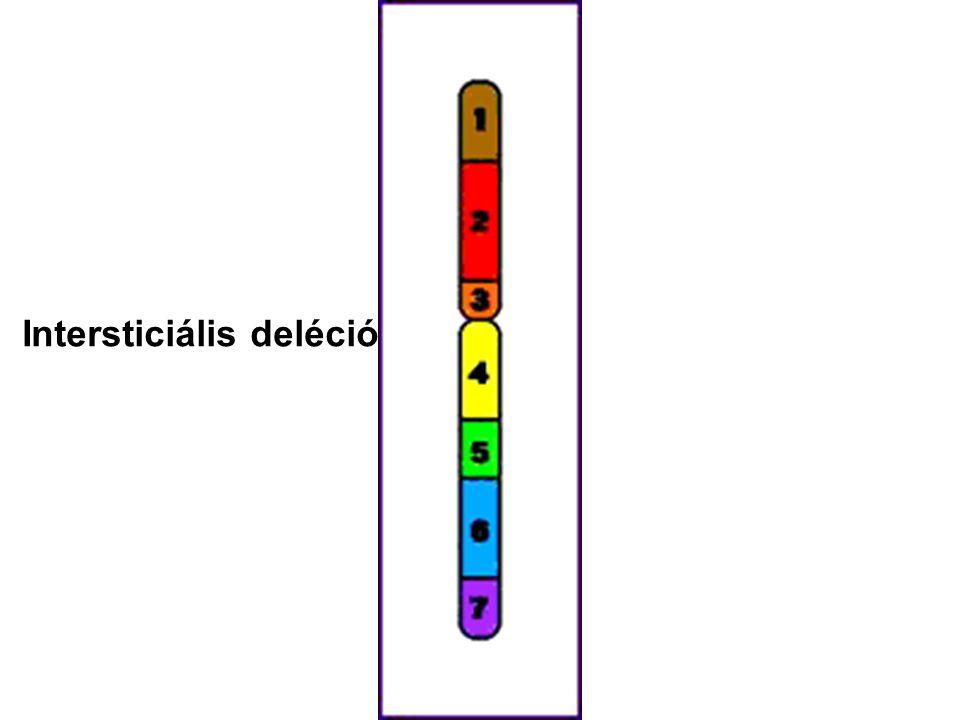 Intersticiális deléció