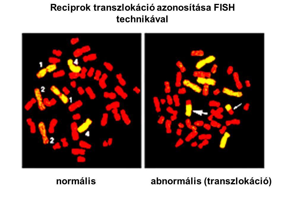 Reciprok transzlokáció azonosítása FISH technikával