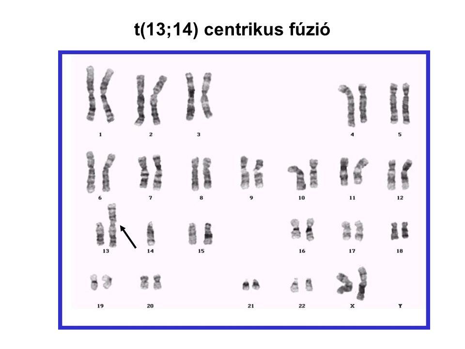 t(13;14) centrikus fúzió