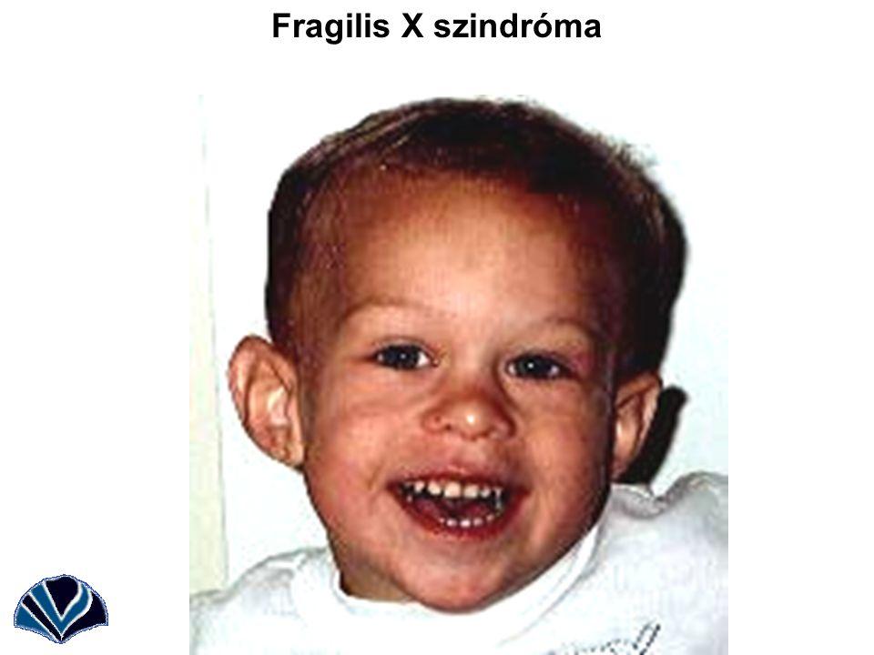 Fragilis X szindróma