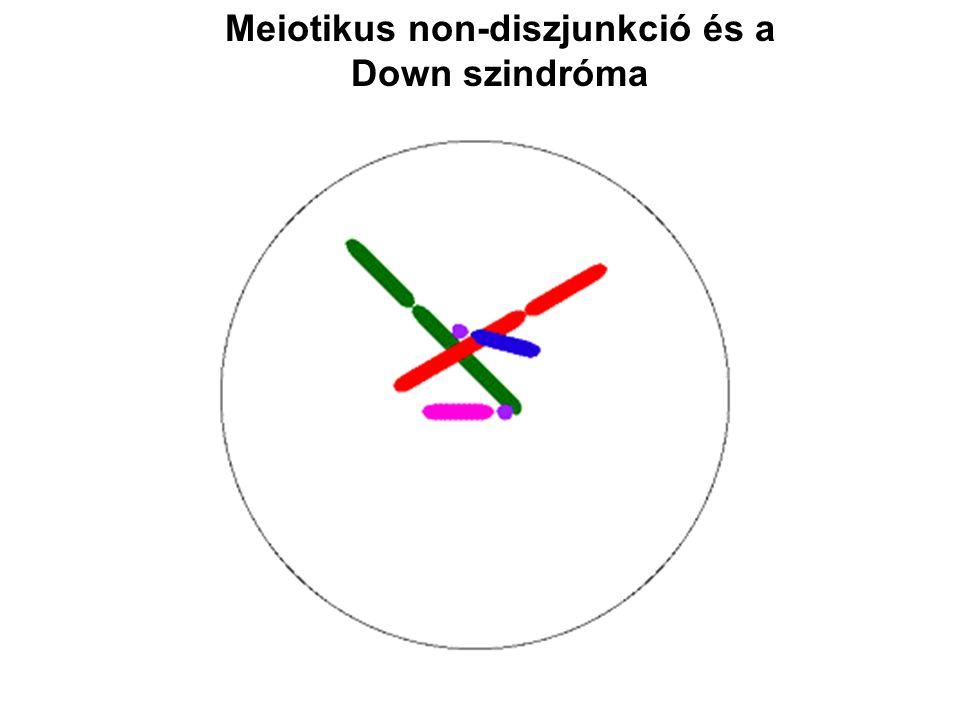 Meiotikus non-diszjunkció és a Down szindróma