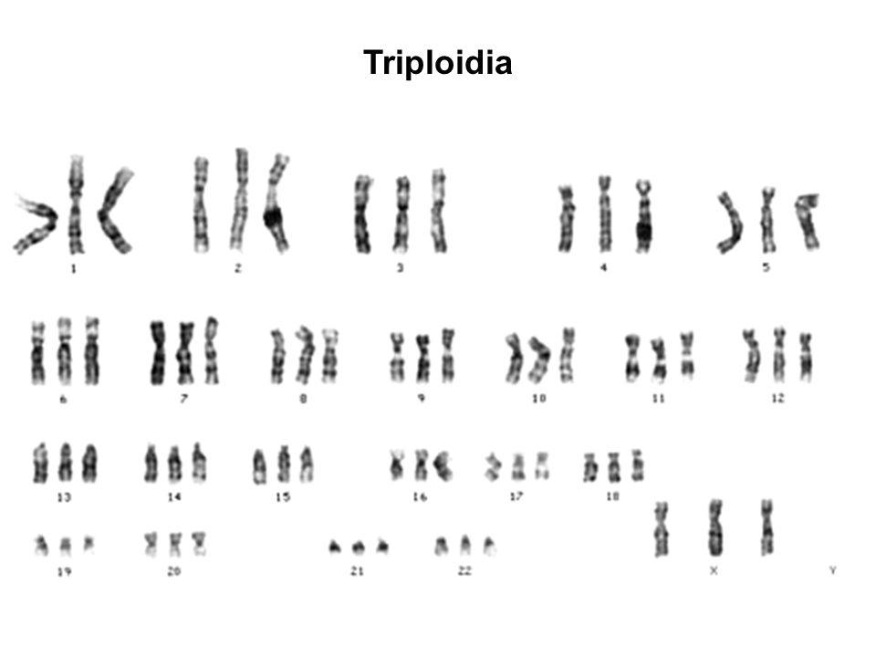 Triploidia
