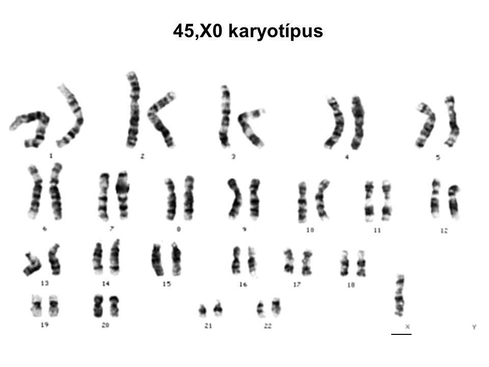45,X0 karyotípus