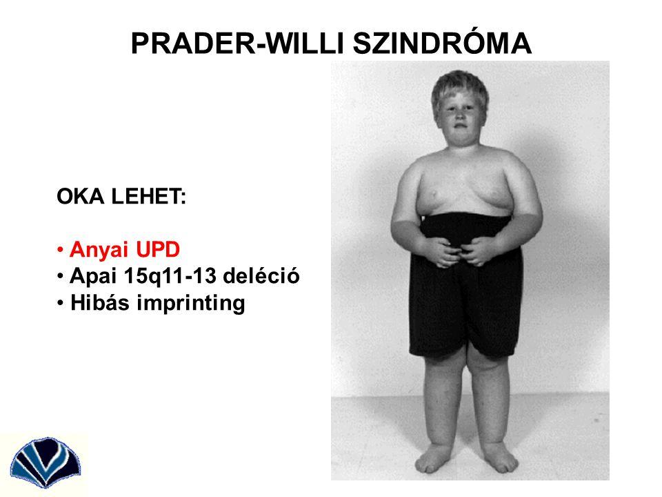 PRADER-WILLI SZINDRÓMA
