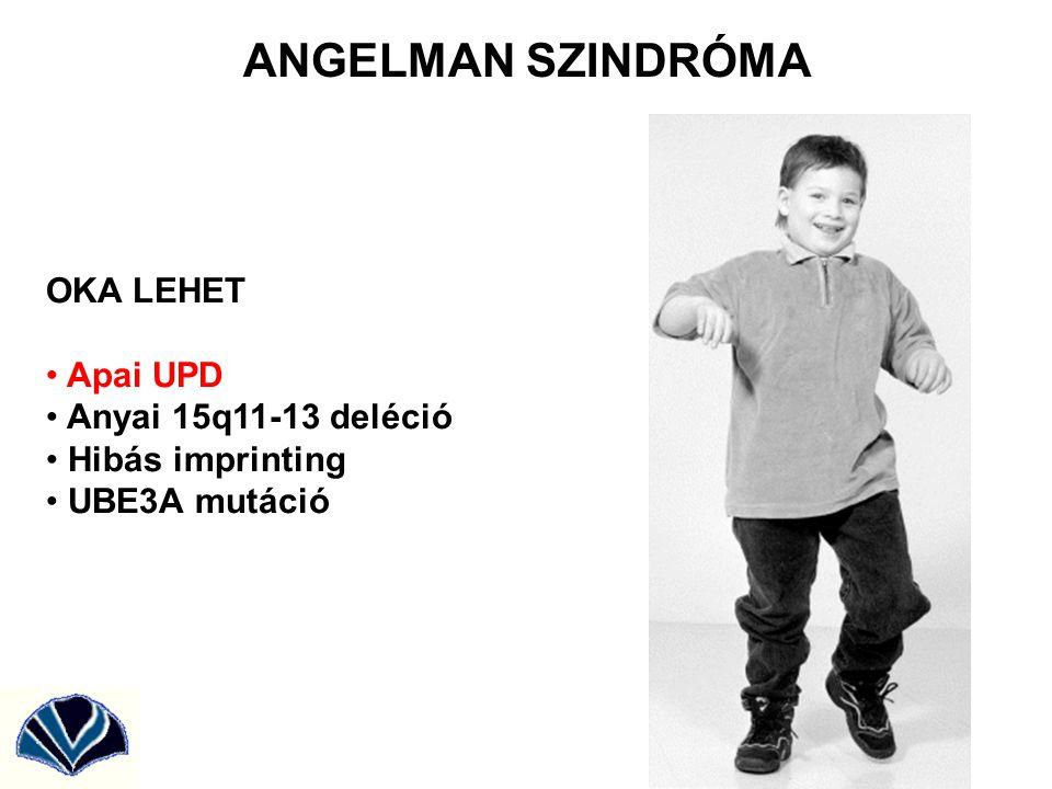 ANGELMAN SZINDRÓMA OKA LEHET Apai UPD Anyai 15q11-13 deléció
