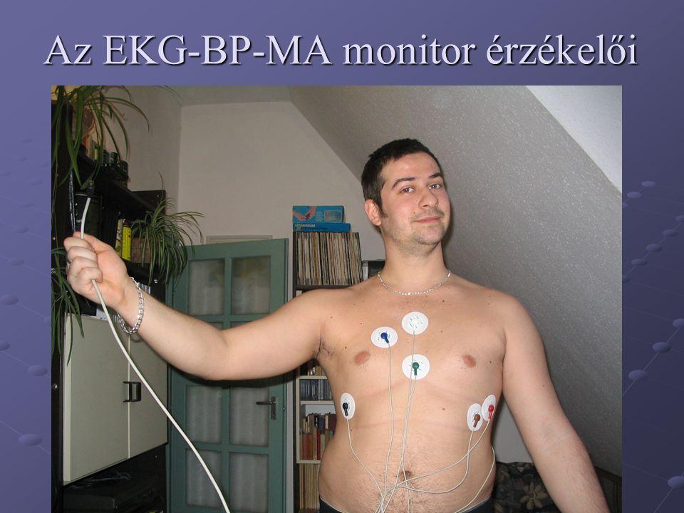 Az EKG-BP-MA monitor érzékelői